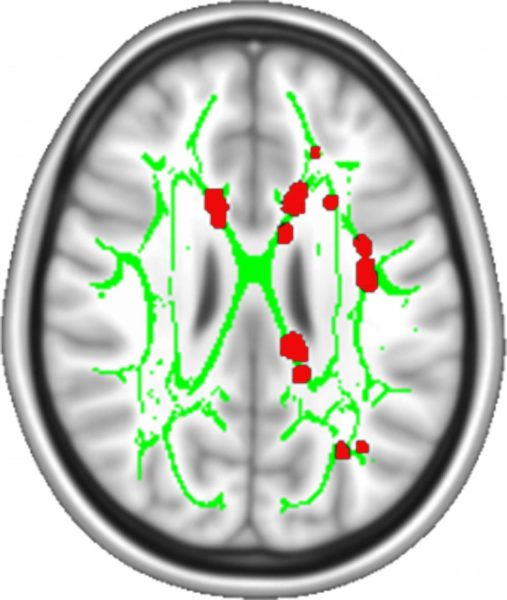 brain wired for chronic pain