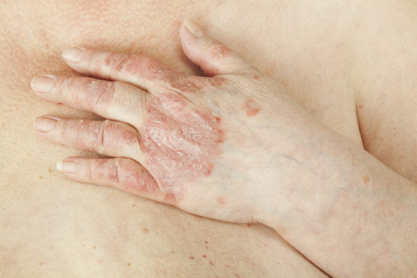 skin sensitive to touch